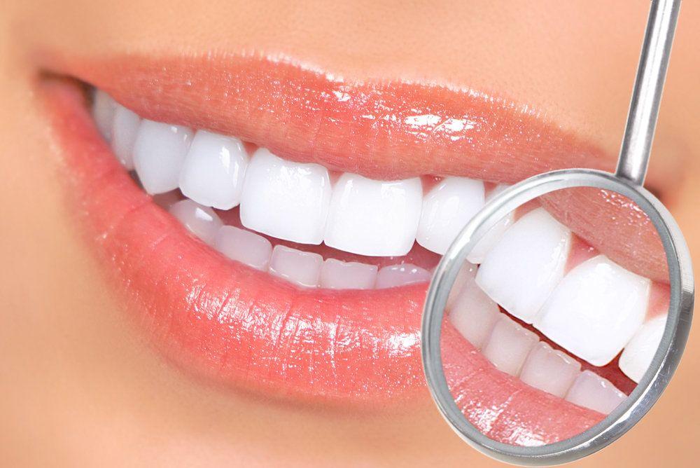 image of teeth whitening
