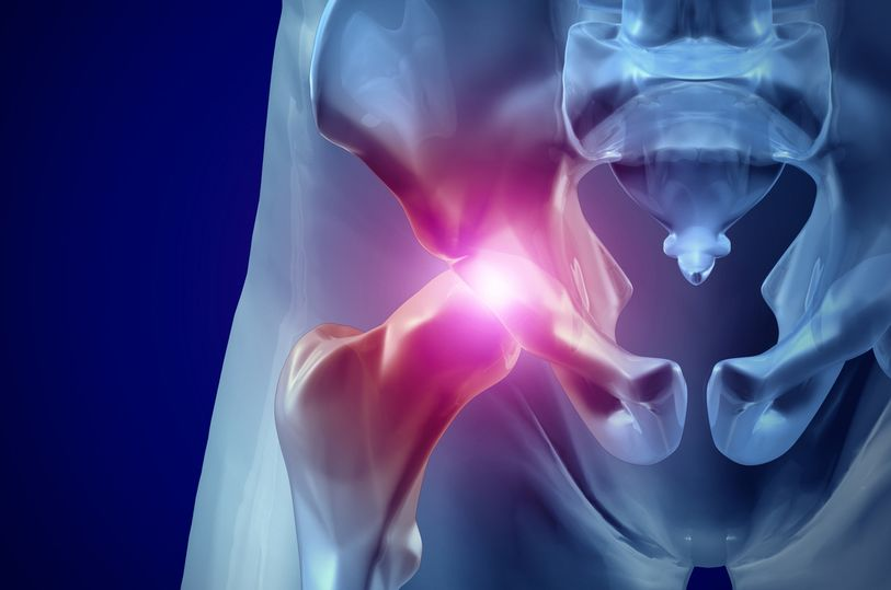 Can Bariatric Surgery Reduce the Need for Hip Replacement