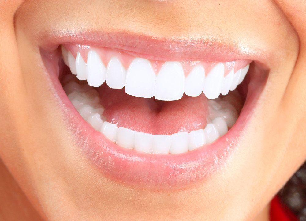 image of gum contouring