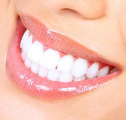 Knoxville Professional Teeth Whitening