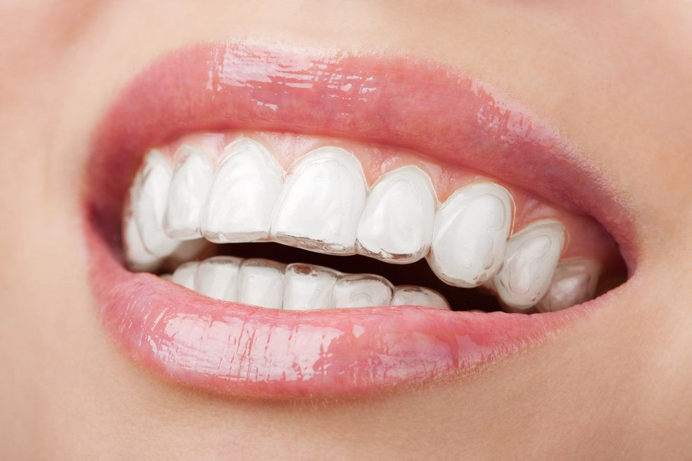 A woman wearing Invisalign trays