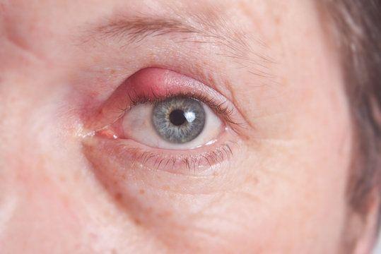 eye with stye