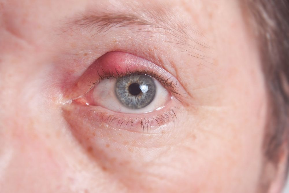 Patient with a red, swollen eyelid
