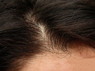A close-up view of the part in a man's hair.