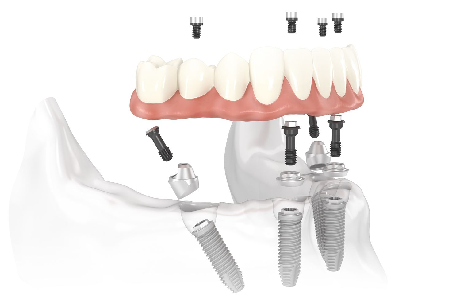 illustration of all-on-4 implant-supported dentures