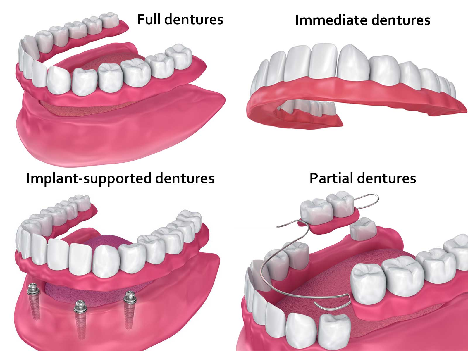 Dentures - Greenwood, MS - Todd Fincher DDS Smiles for Life