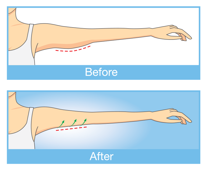 Illustration of the arm lift technique