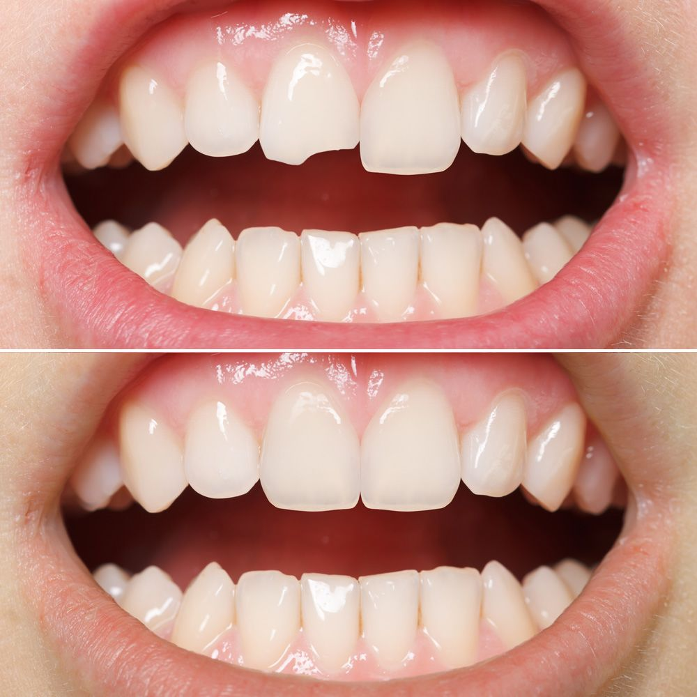A smile with a damaged tooth compared to a smile free of blemishes