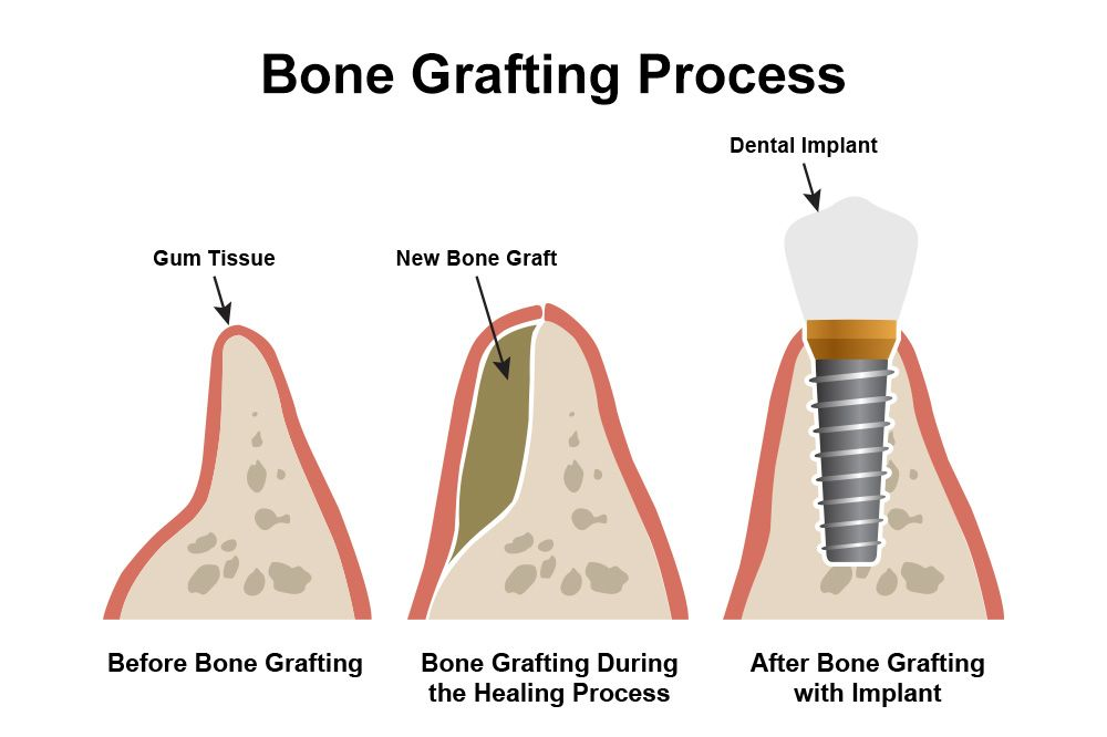 Three drawings showing the main stages of a bone grafting procedure