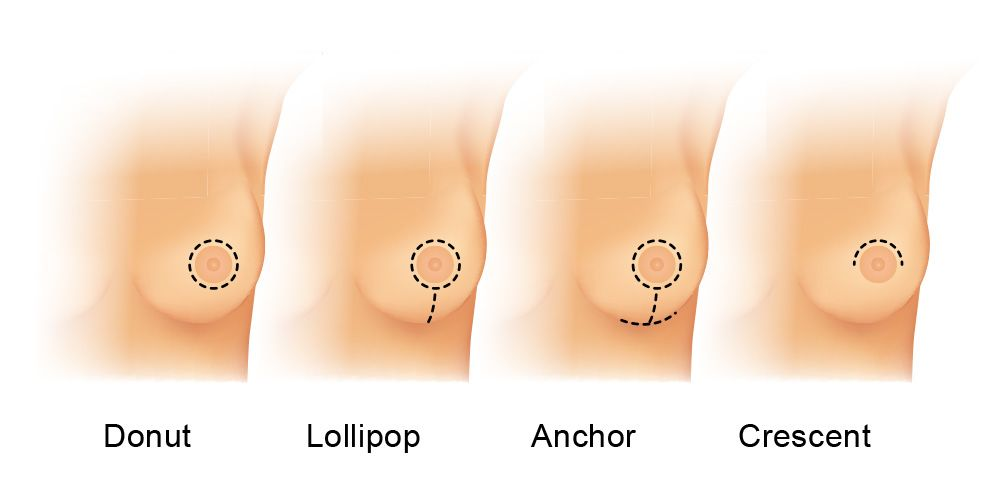 Breast lift incision methods