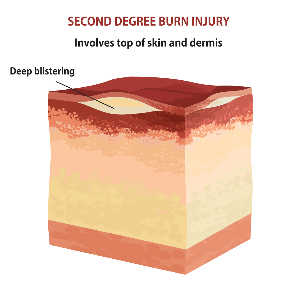 The damage caused by second-degree burns