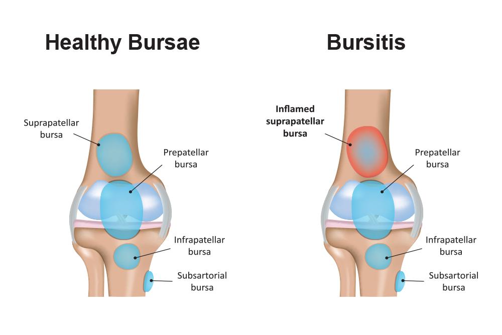 Bursitis Treatment Cedar Park Tx Austin Tx Bursitis Surgery