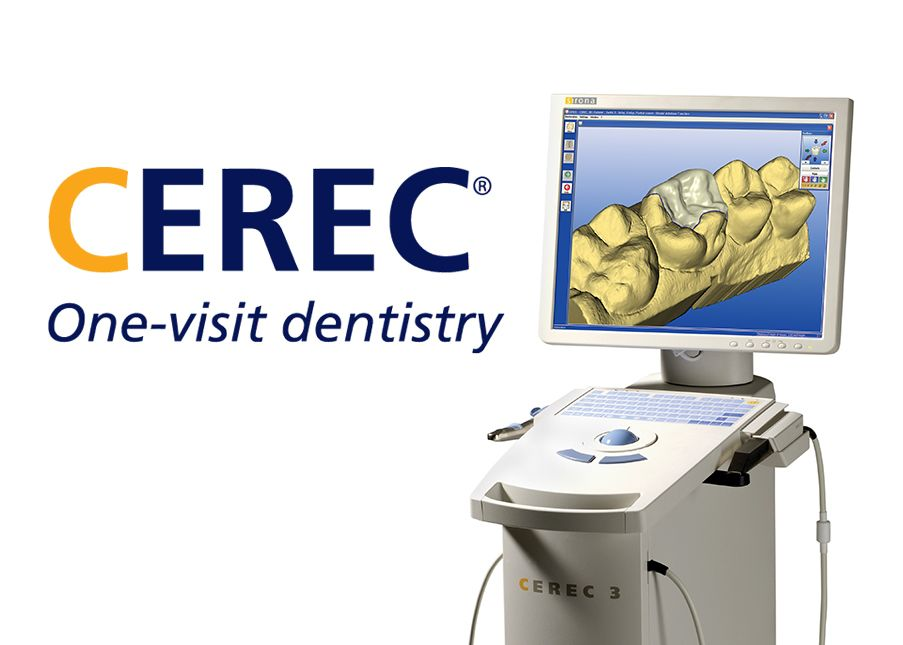 An image of the CEREC system