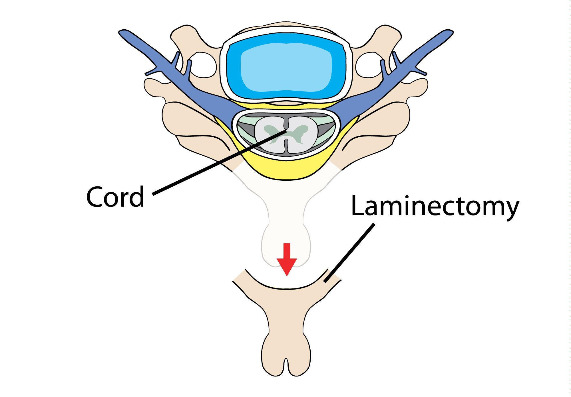 illustration of the laminectomy procedure