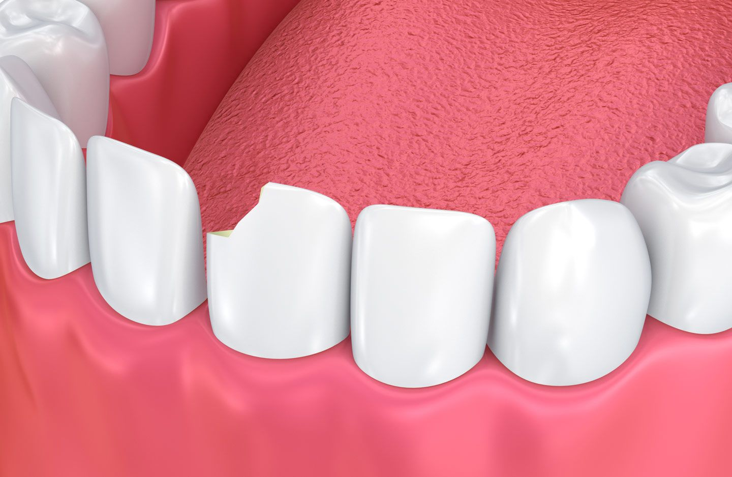 digital image of chipped front tooth
