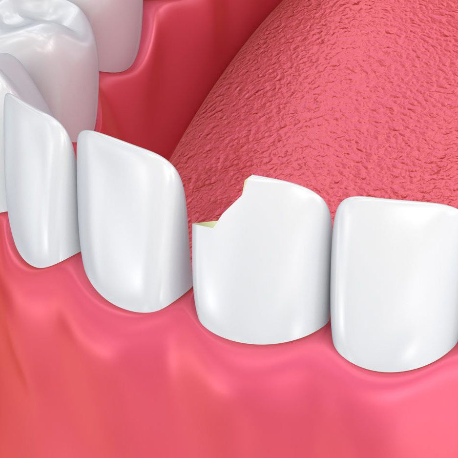 Digital image of chipped tooth