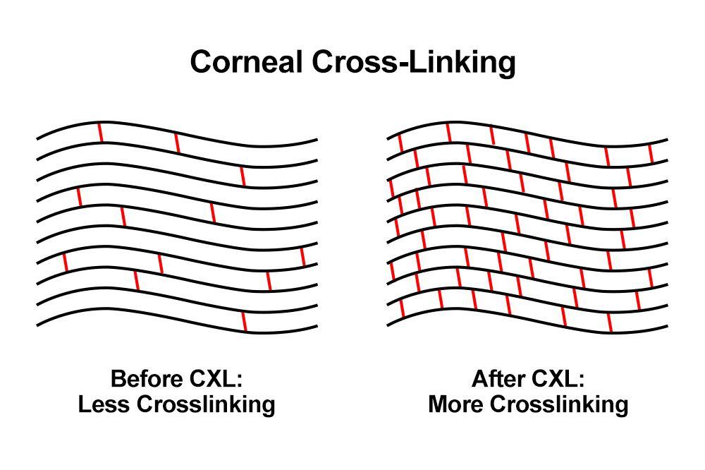 Demonstration of how corneal cross-linking strengthens corneal tissue.
