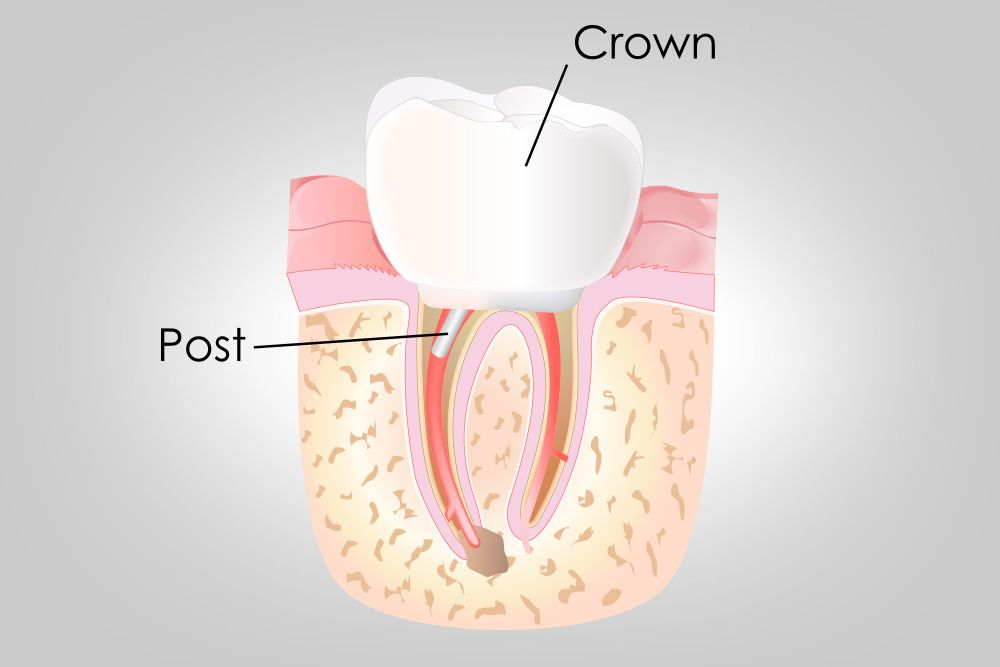 Closeup of a dental crown and tooth root