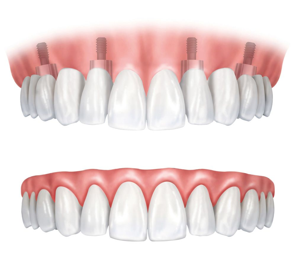 An illustration of dental implant-supported dentures