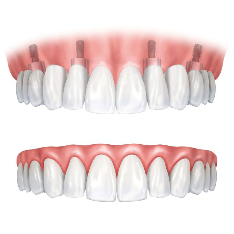 Implant-supported false teeth and traditional dentures