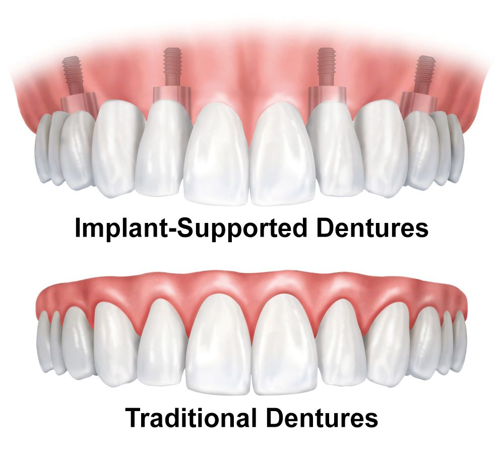 Illustration of implant-supported and traditional dentures.