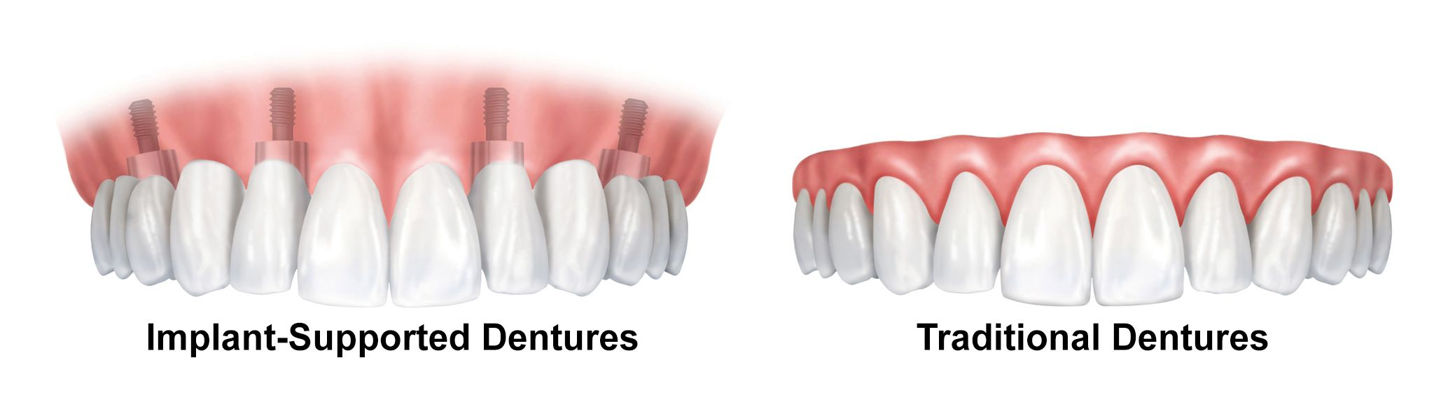 gums with implant-supported dentures diagram white teeth pink gums traditional dentures