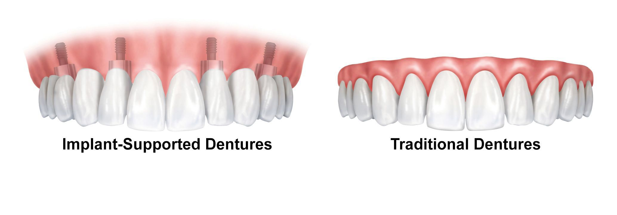An illustration of implant-supported dentures next to traditional dentures