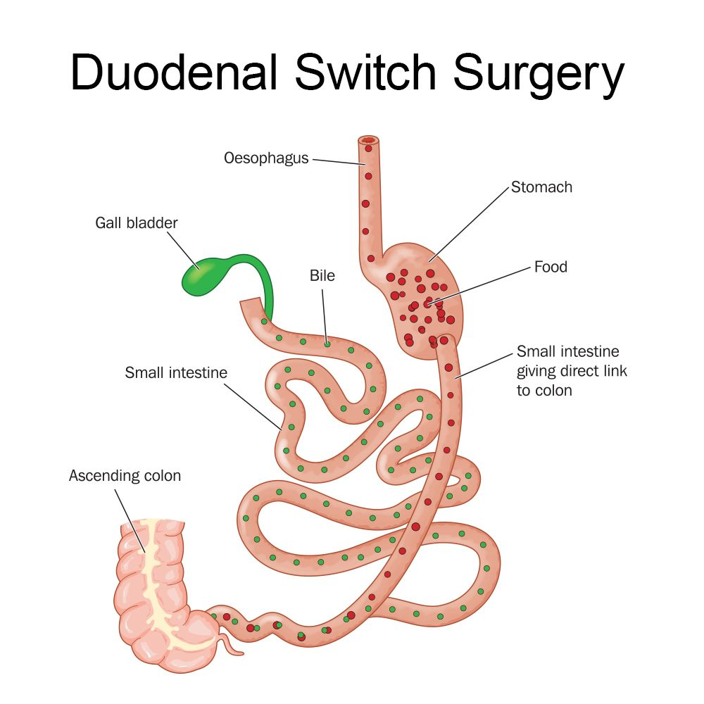 How duodenal switch surgery works