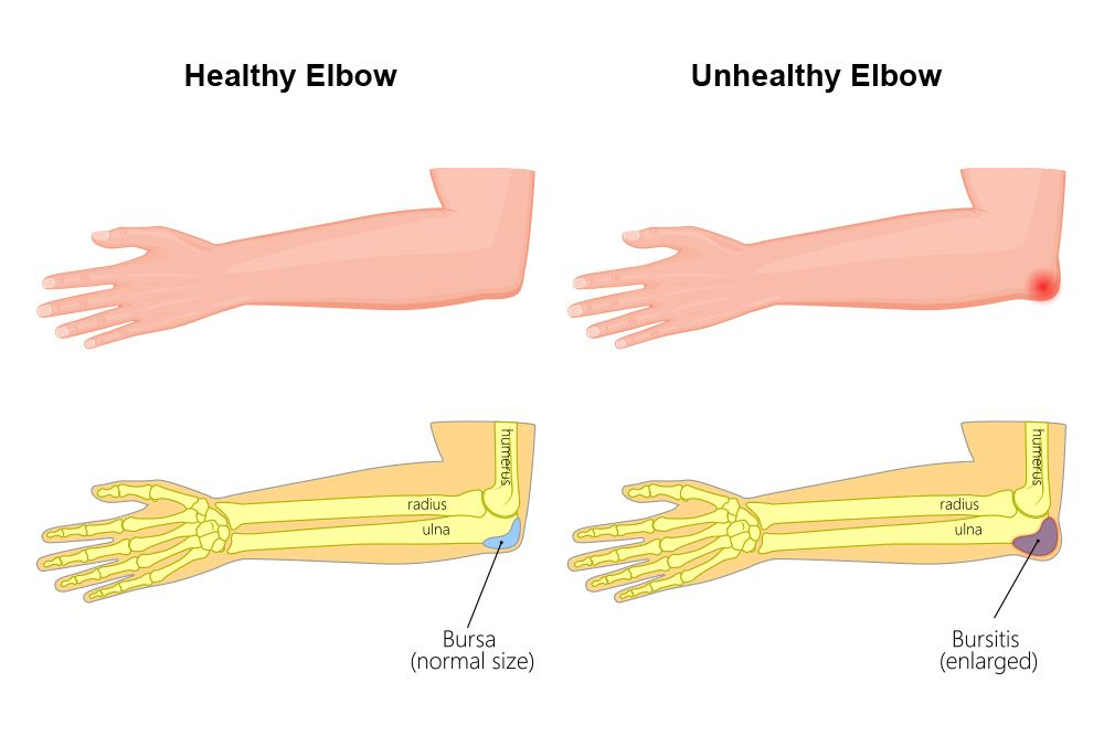 An image depicting elbow bursitis