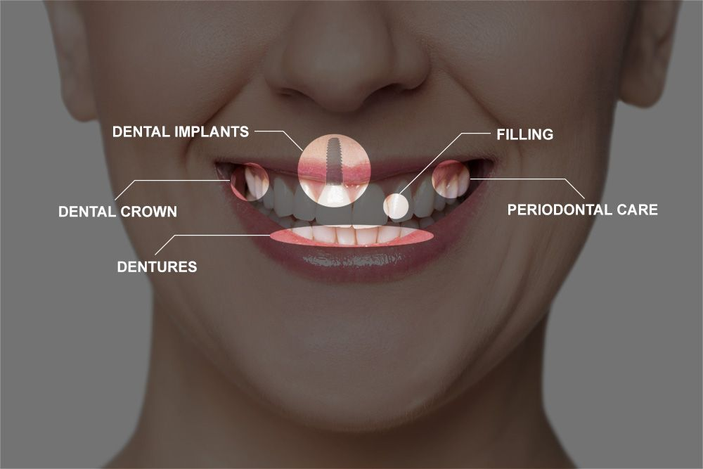 Composite photo of full mouth reconstruction procedures