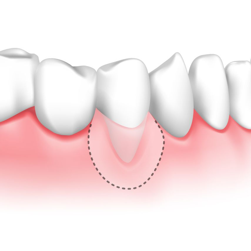 Digital image of area where gum graft would be needed