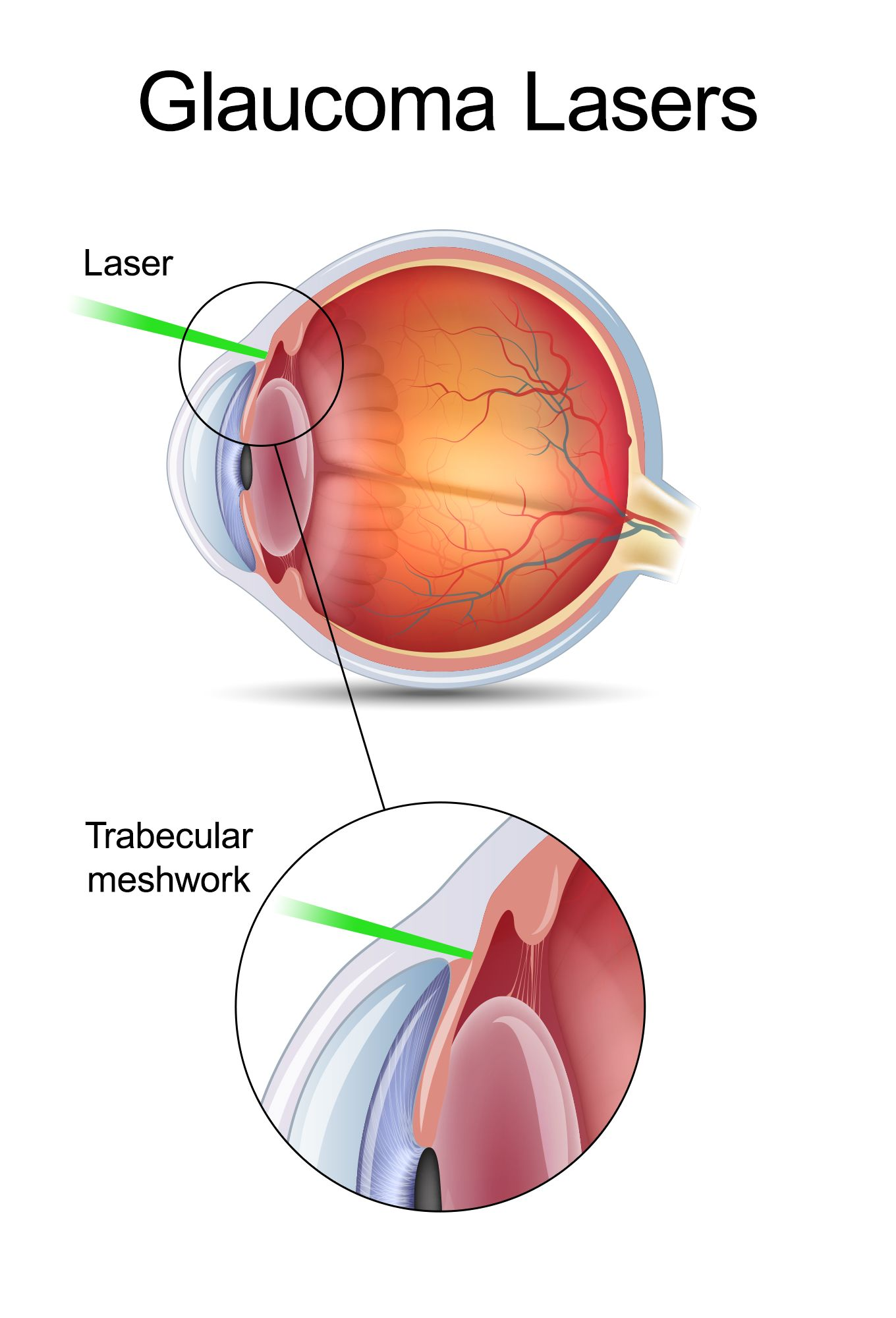 Illustration of a laser being used to treat glaucoma