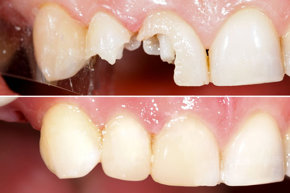 A before photo of a chipped tooth, and an after photo of the restored tooth