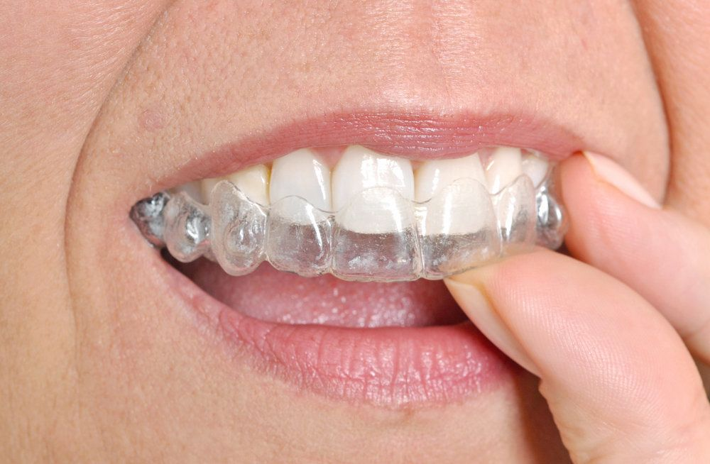 A woman using an Invisalign tray