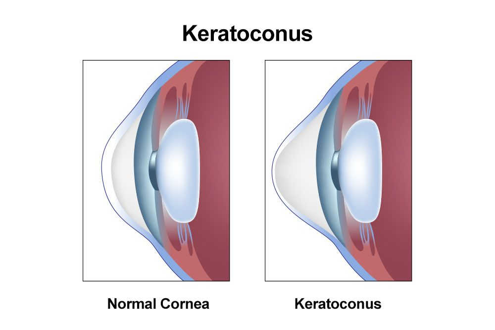 An eye affected by keratoconus