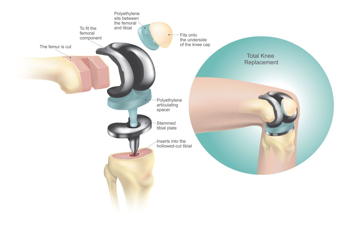 How a knee replacement works