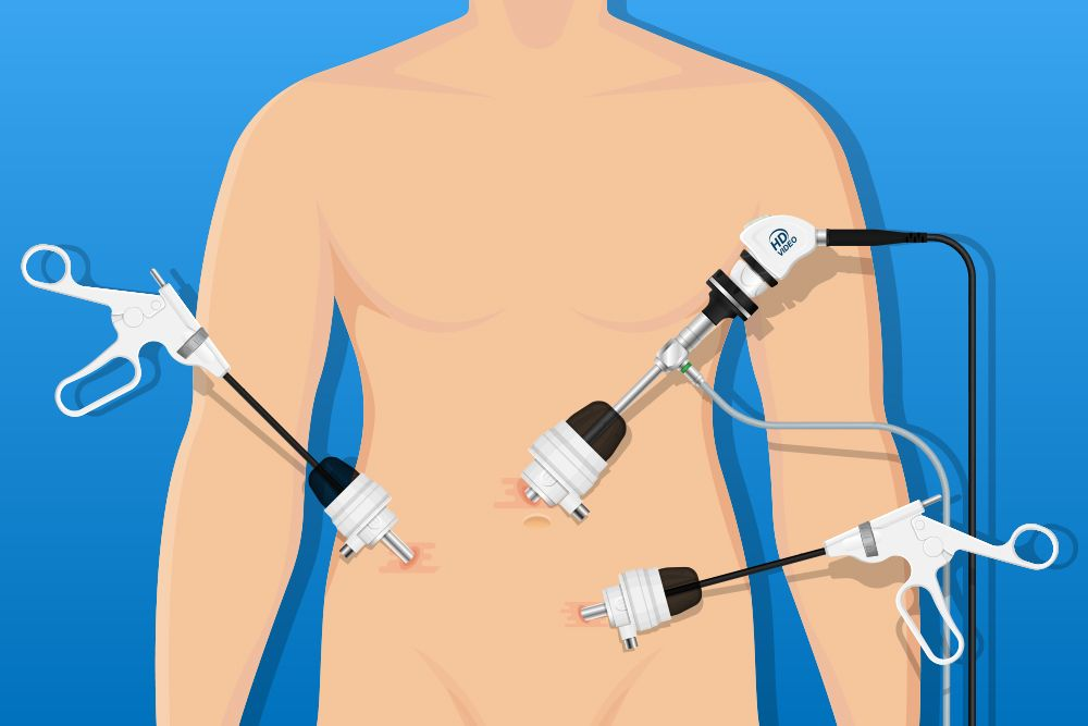 Illustration of a laparoscopic surgery