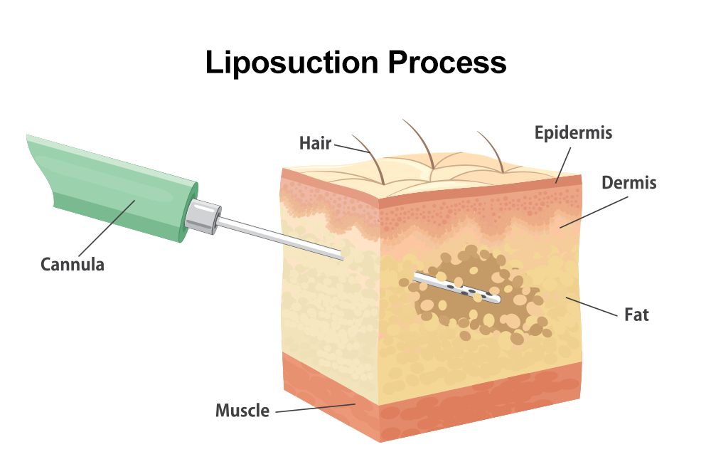 Diagram of the tumescent liposuction process