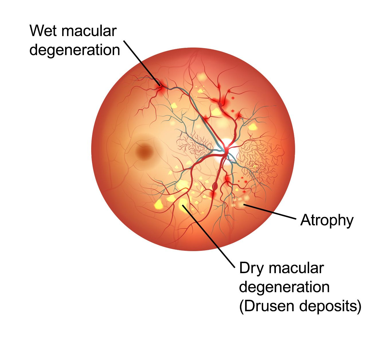 Illustration of an eye affected by macular degeneration