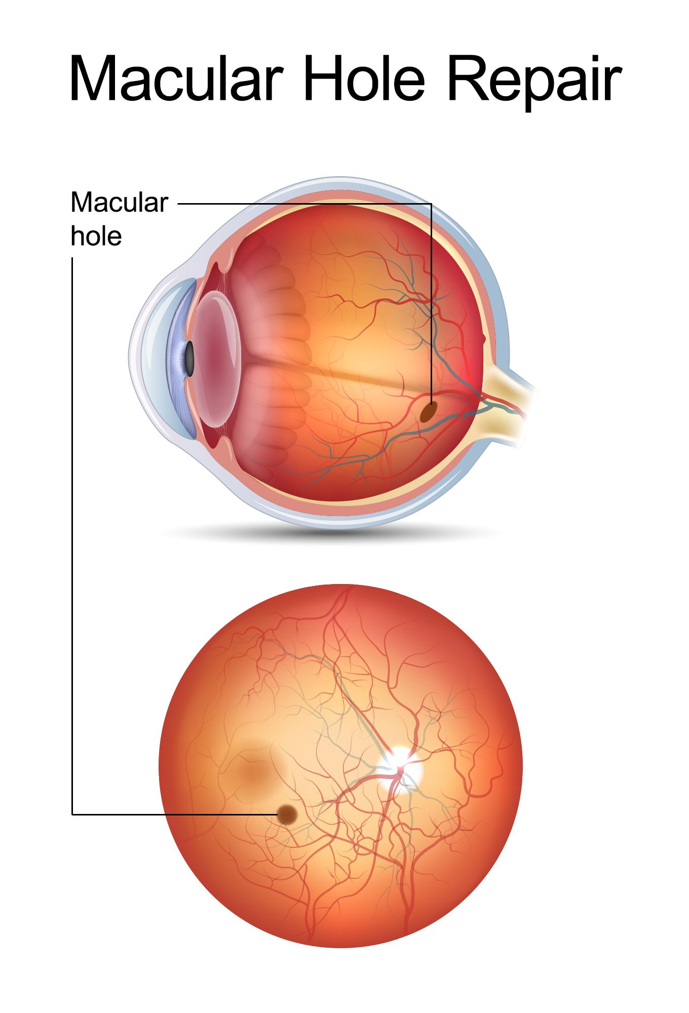 How to repair a macular hole