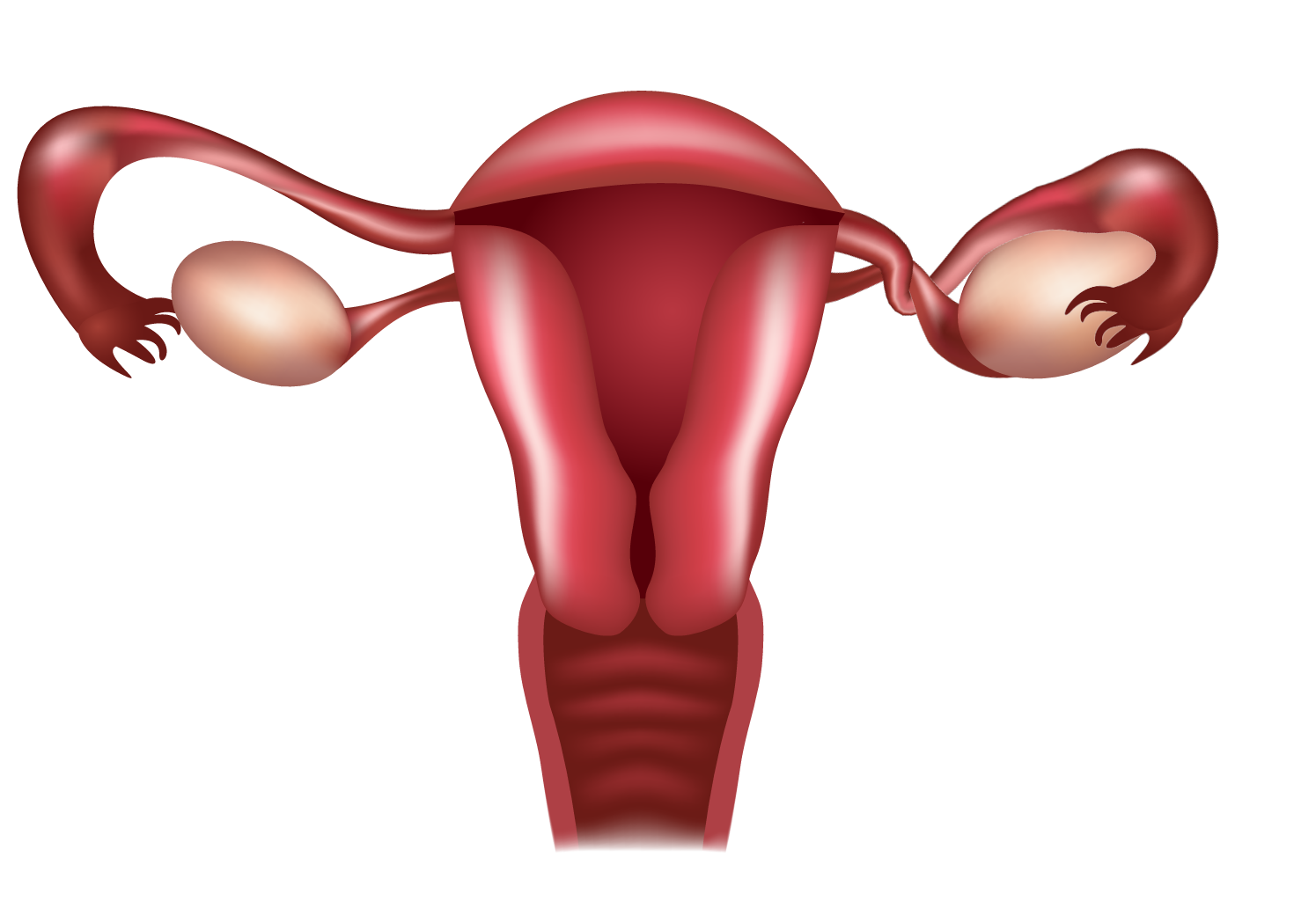 Illustration of blocked fallopian tube