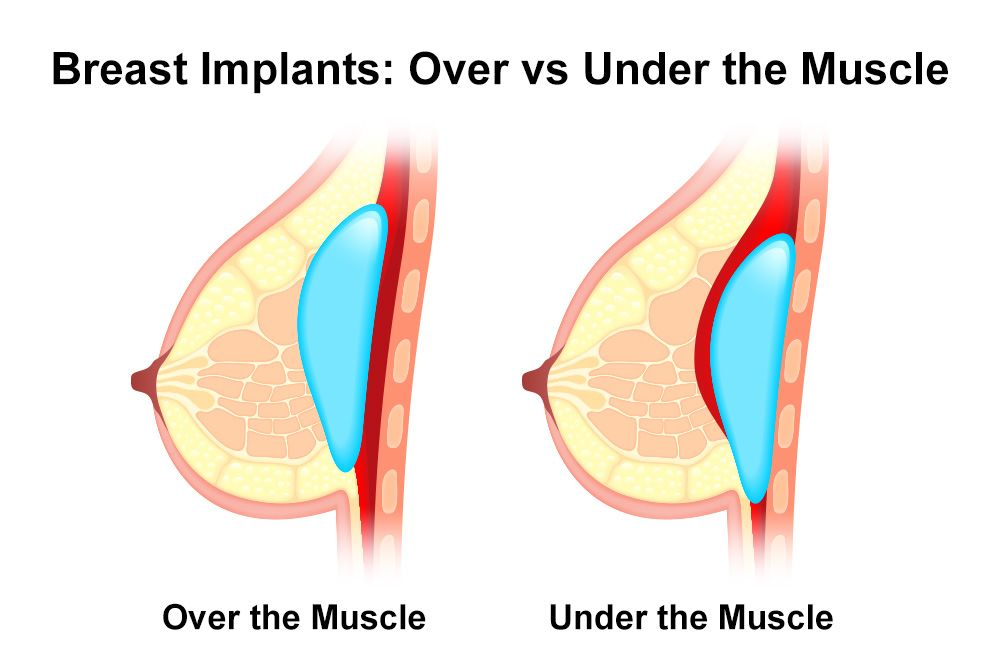 Illustration of breast implant placement