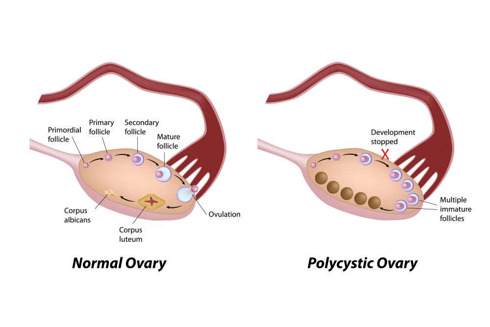 Normal ovary vs. one with PCOS
