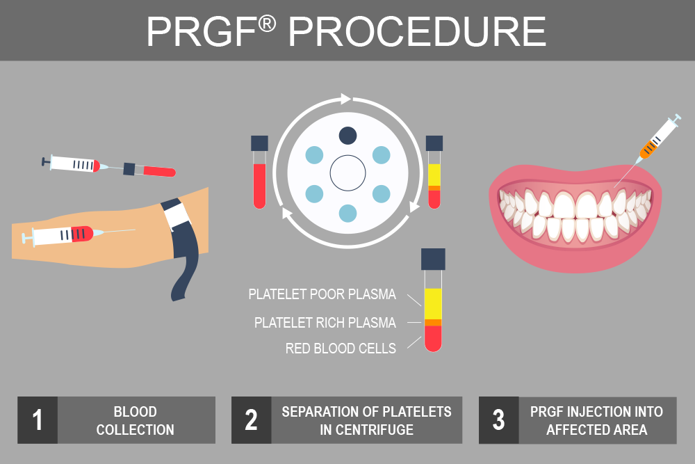Illustration of the PRGF® procedure process.
