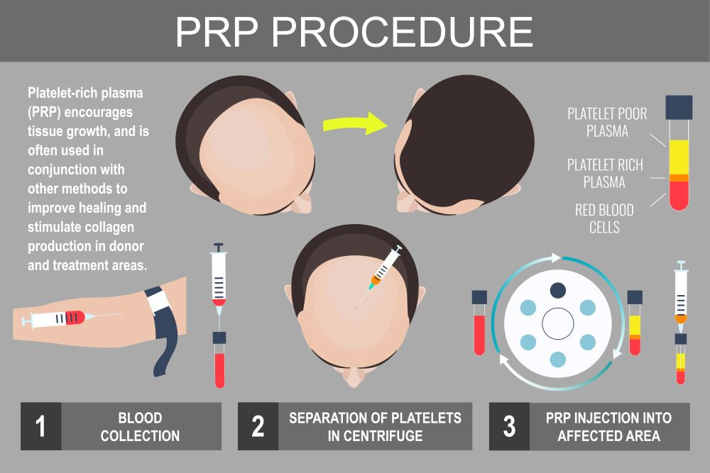Diagram showing PRP for hair restoration