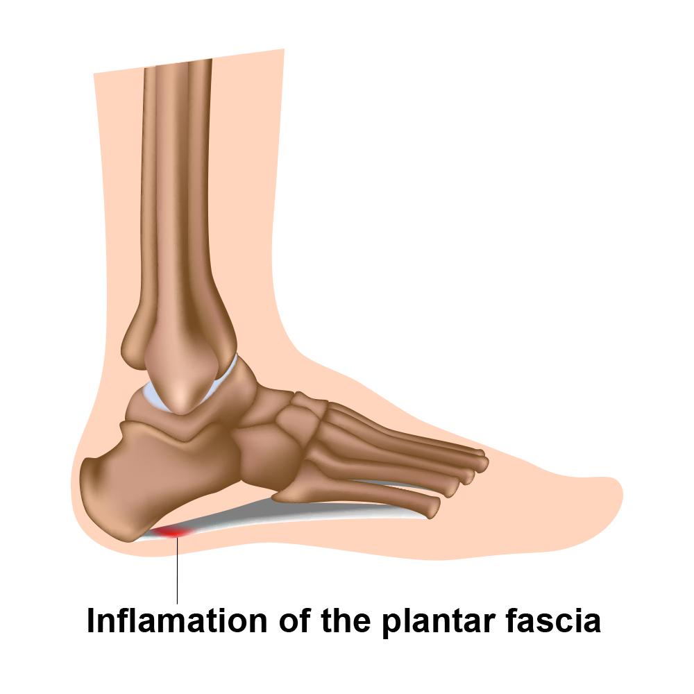 Plantarfasziitis Treatment