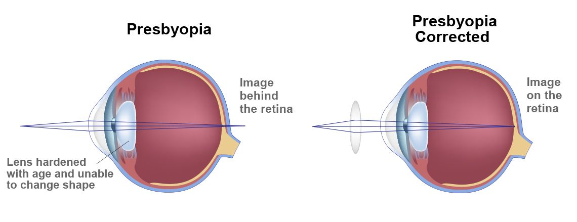 An illustration of an eye with presbyopia and corrected presbyopia