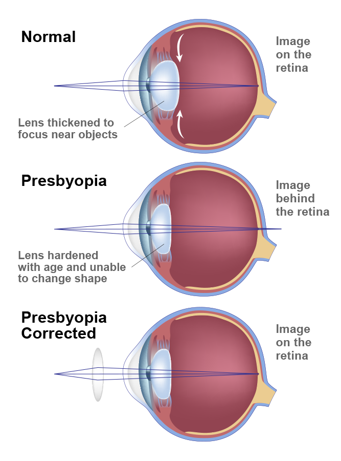 Chart comparing shape of eye with normal vision, uncorrected presbyopia, and corrected presbyopia.