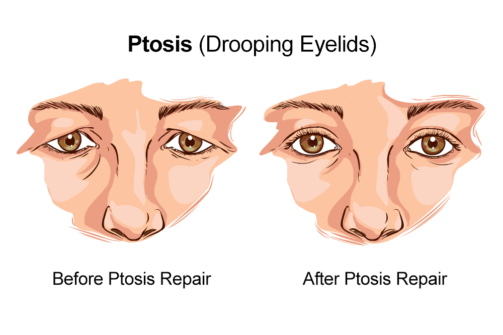 Image of ptosis