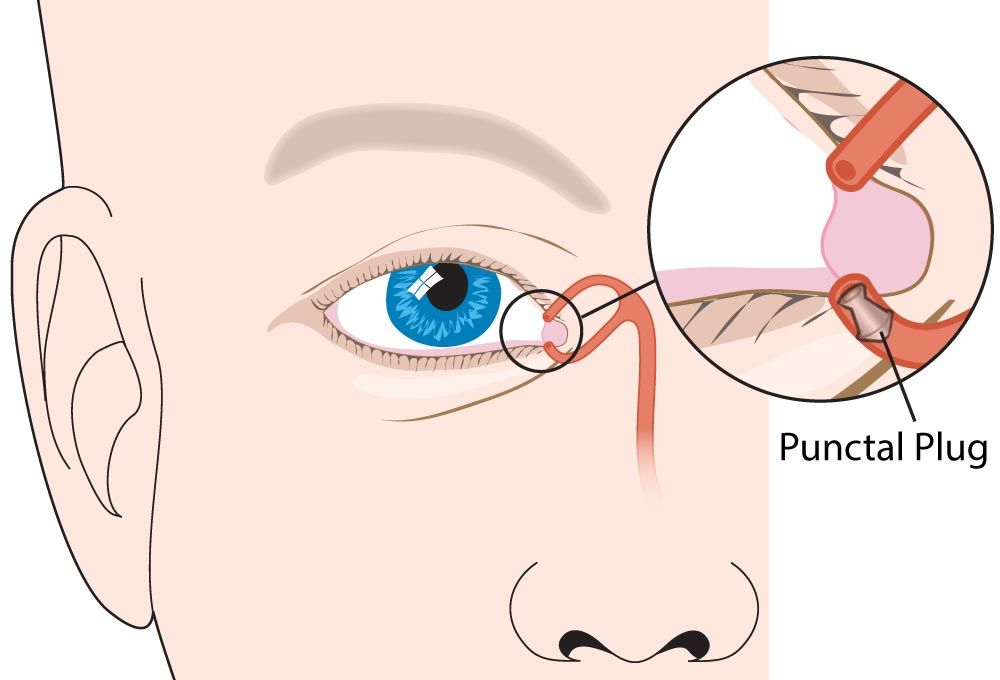 Digital illustration of punctal plug placement